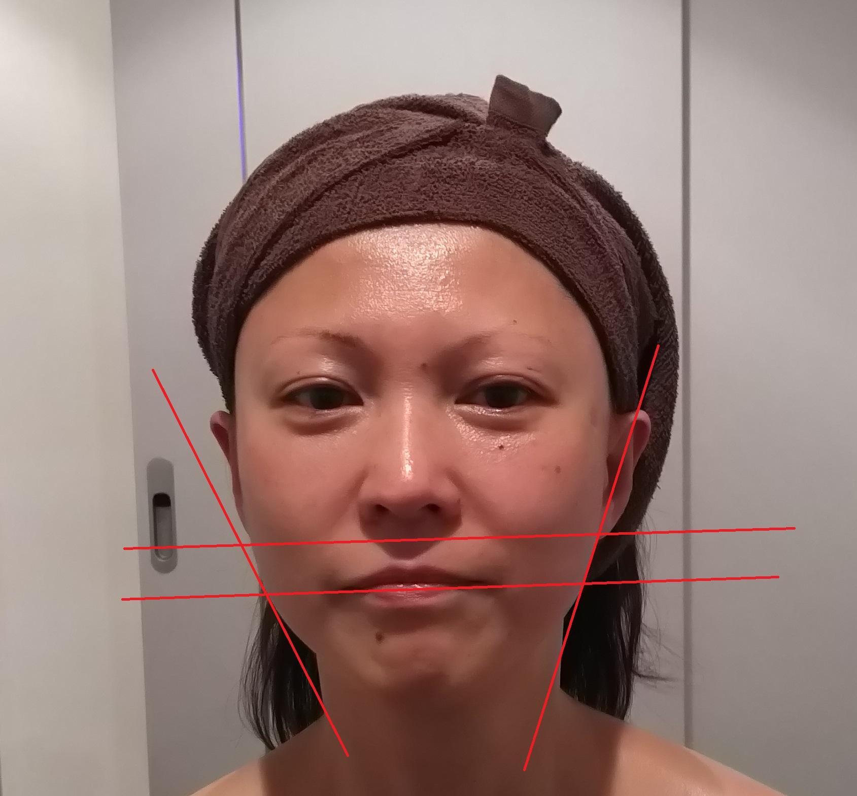 顔の左側だけ施術後
